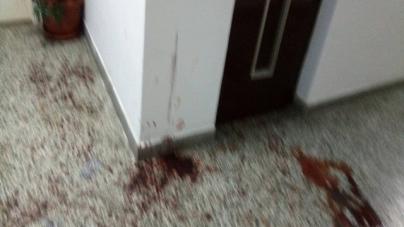 Tuzla: Djevojka pronađena na stubištu zgrade u lokvi krvi