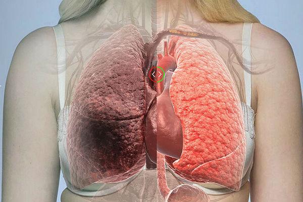 Evo šta je najveći uzrok raka pluća i srčanih oboljenja