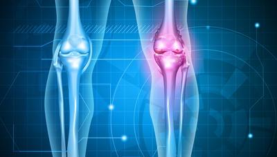 Osteoartritis – degenerativna bolest zglobova