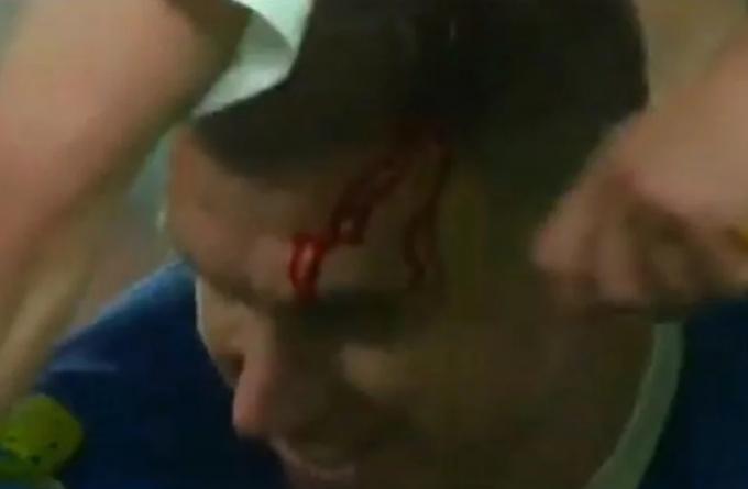 Džeko izvukao deblji kraj u duelu sa Chiellinijem: Štoper Azzurra razbio glavu kapitenu BiH
