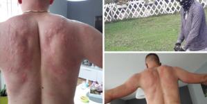 """Osijek pod najezdom komaraca: """"Ne može se živjeti, ovo su moja leđa nakon 45 minuta vani"""""""