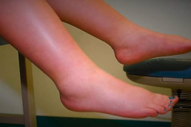 Oticanje nogu: Naučite kako sami sebi da pomognete