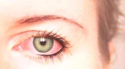 Zašto su oči crvene: Iritacija, alergija ili infekcija?