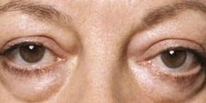 Na licu piše baš sve: Znate li od čega bolujete ako su vam oči podbuhle?