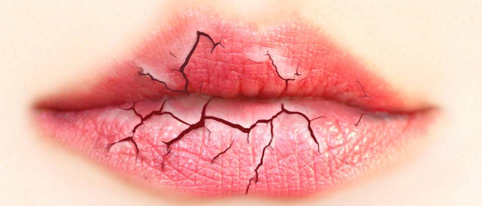 Zaštitite svoje usne od pucanja