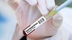 Vanredno u Hrvatskoj: Već je 168 zaraženih, čak 40 više nego jučer