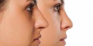 Oblik nosa otkriva kakvi ste