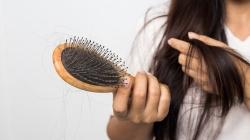 Mogući uzroci opadanja kose