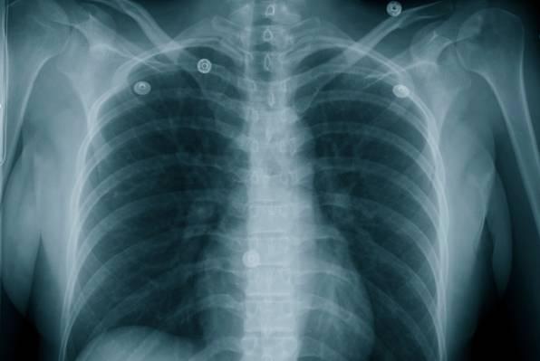 Kukuruz, luk i kopriva čuvaju pluća
