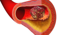 Prvi simptomi tromboze, opasni su po život
