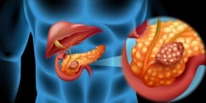 Karcinom gušterače: 8 simptoma koje ne smijete ignorisati, ako samo nešto primijetite hitno idite doktoru