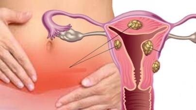 Jako djelotvorna kombinacija pri liječenju ciste jajnika i mioma maternice
