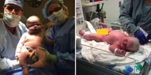 Žena rodila bebu od šest i pol kilograma: U bolnici nisu imali odjeće za novorođenče