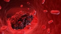 Šest znakova koji ukazuju da imate krvni ugrušak